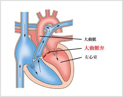 症 手術 弁膜 心臓